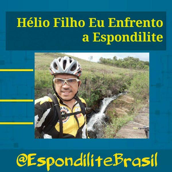 Depoimento Hélio Filho Eu Enfrento a Espondilite