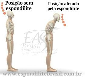 """alt=""""Controle postural é alterado em pacientes com espondilite"""""""
