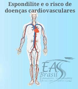 """alt=""""Homens com Espondilite idade de 60-69 tem risco maior para doenças cardiovasculares"""""""