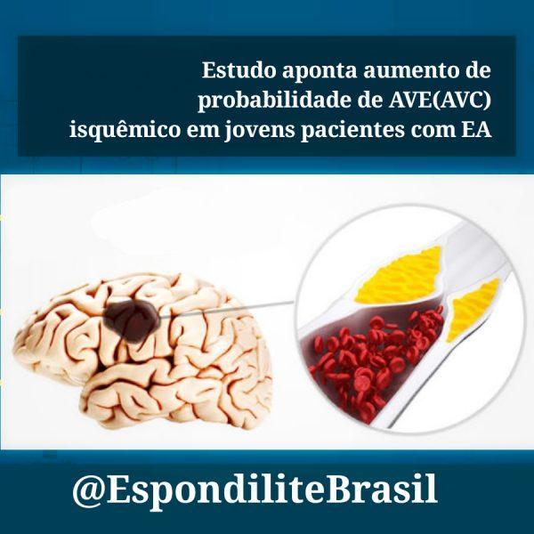 Novos Estudos – Estudo aponta aumento de AVE(AVC) isquêmico em pacientes com Espondilite