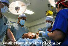 """alt=""""Indicações de cirurgia da coluna para tratar espondilite"""""""