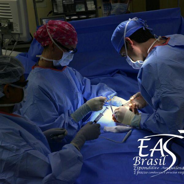 Espondilite Anquilosante e a necessidade de cirurgia
