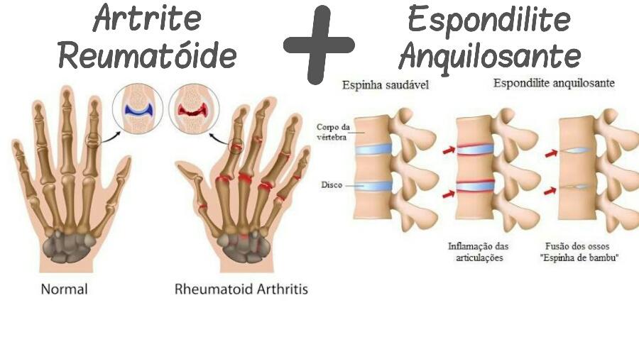 "alt=""Artrite Reumatoide uma Prima da Espondilite Anquilosante"""
