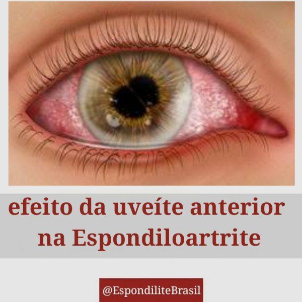Efeitos da uveíte anterior nas Espondiloartrites