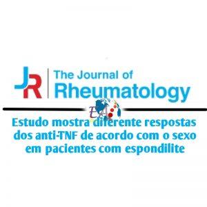 """alt=""""Diferente respostas aos anti-TNF de acordo com o sexo em espondilite"""""""