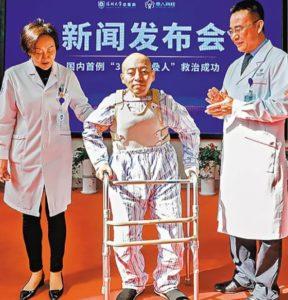 """alt=""""Cirurgia corrige postura extrema de espondilítico"""""""